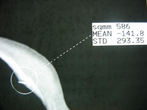 膑骨淋巴结结构图