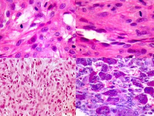 05月07日 纤维母细胞肌纤维母细胞肿瘤 1 200 zhanglei 中国病理学网