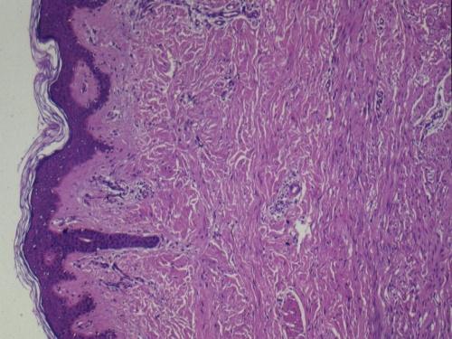 05月07日 纤维母细胞肌纤维母细胞肿瘤 201 400 zhanglei 中国病理学